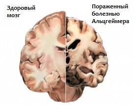 Изменения мозга при болезни Альцгеймера