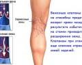 Причины варикоза ног, и его устранение