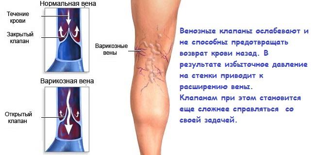 Как делают операции на венах ног