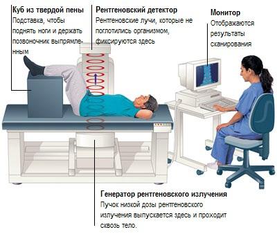 Ренгеновская костная денситометрия