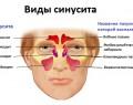 Синусит: симптомы, причины, диагностика, лечение
