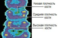 Пример результатов денситометрии