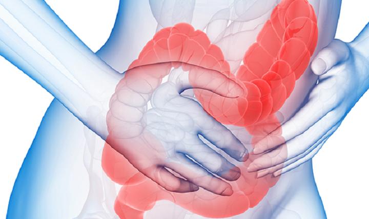 Синдром раздраженного кишечника лечение при беременности