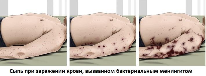 Сыпь при бактериальном менингите (септицемия)