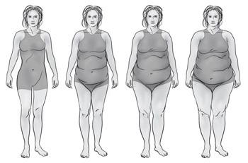 Набор веса при гипотиреозе