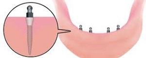 Внутрислизистые импланты