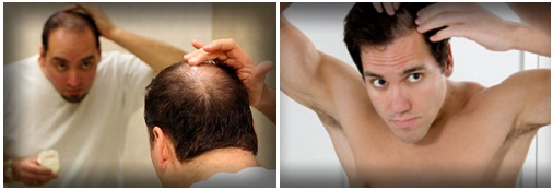 Потеря волос при заболевании щитовидной железы у мужчин