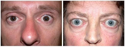 Выпучивание глаз при гипертиреозе