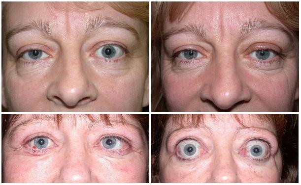 Выпучивания глаз (экзофтальма) у женщин