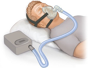 Специальная маска для лечения синдрома обструктивного апноэ сна