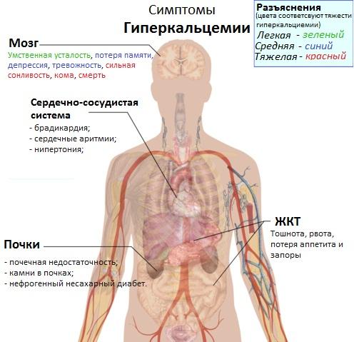 Симптомы гиперкальцемии