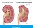 Хронический пиелонефрит у женщин: симптомы, причины, лечение