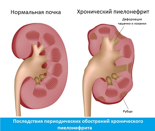 Почка поражённая хроническим пиелонефритом