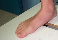 Форма стопы при плоскостопии
