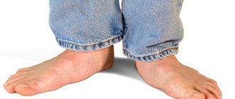 Ноги взрослого человека с плоскостопием
