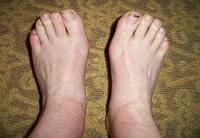 Припухлость ног при плоскостопии