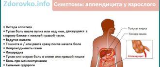 Симптомы аппендицита у взрослого