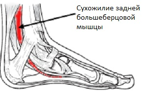 Сухожилие задней большеберцовой мышцы