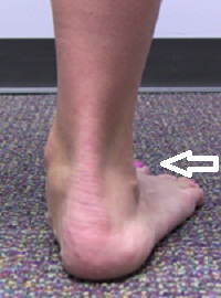 Видимость пальцев ноги, как один из основных признаков плоскостопия