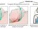 Синдром обструктивного апноэ сна: симптомы, причины, лечение