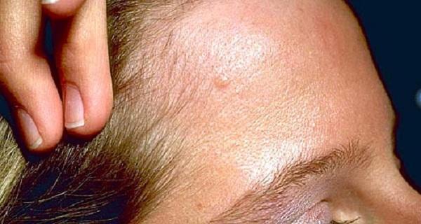 Базалиома фото стадии и лечение базалиома кожи лица носа