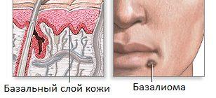 Базалиома на лице