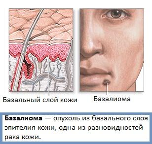 Базалиома фото начальная стадия фото и симптомы
