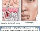 Базалиома: причины, стадии, лечение, фото