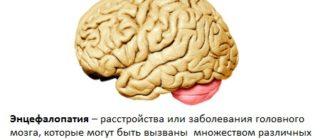 Энцефалопатия – определение понятия