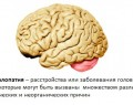 Энцефалопатия головного мозга: виды, симптомы, диагностика, лечение