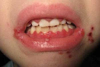 Герпетический стоматит у ребенка, схожий с другим заболеванием