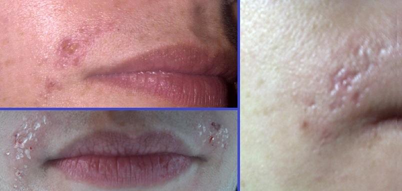 Кожа над губами после элетроэпиляции