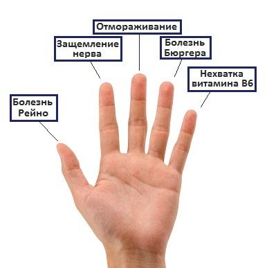 Немеет кончик среднего пальца на правой руке