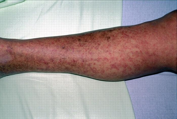 Пятнисто-папулезная сыпь при трихинеллезе