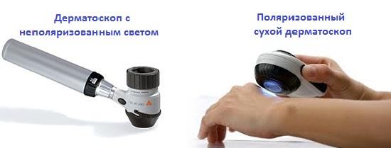Виды дерматоскопов