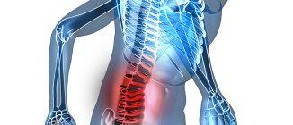 Боль в пояснично-крестцовом отделе при дегенеративных изминениях