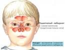 Этмоидит у детей: симптомы и лечение