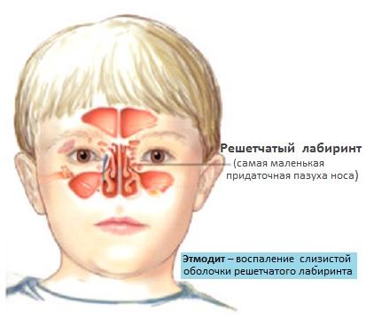 Этмоидит у ребенка