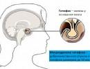 Микроаденома гипофиза – симптомы у женщин и последствия
