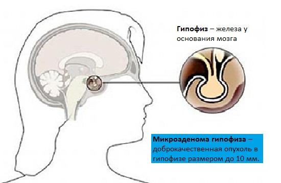Микроаденома гипофиза у женщины