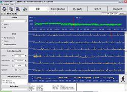 Расшифровка результатов Холтеровского мониторирования ЭКГ