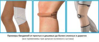 Примеры бандажей, применяемых при артрозе коленного сустава