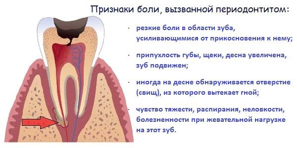 Боль при периодонтите