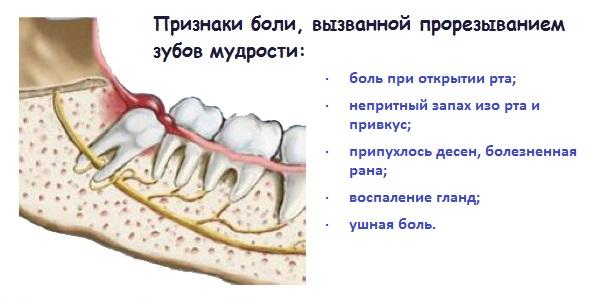 Боли при прорезывании зубов