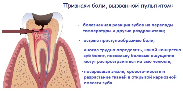 Что делать когда болит зубной нерв в  887