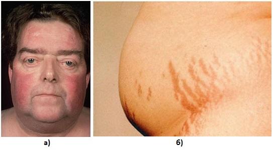 Фото симптомов болезни Иценко-Кушинга