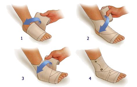 Перематывание ноги при растяжении голеностопного сустава
