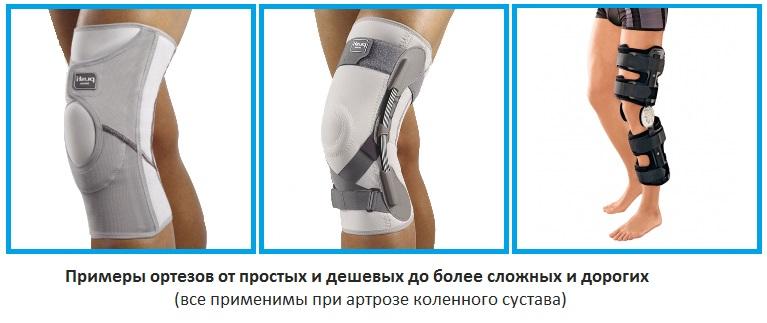 Примеры ортезов, применяемых при артрозе коленного сустава
