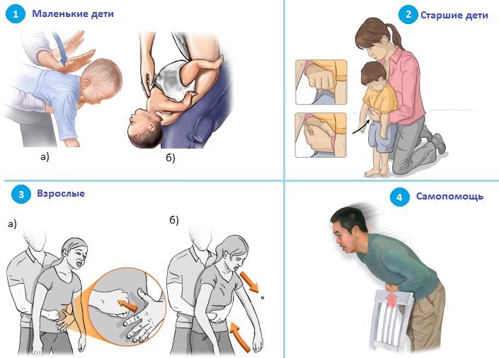 Помощь при обструкции дыхательных путей, зависимо от возраста