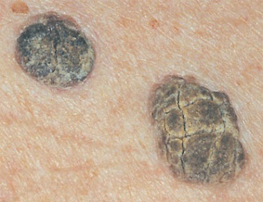 Косвенные признаки вируса папилломы человека при цитологии